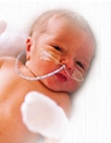 Feeding Difficulties in Preterm/LBW Infants